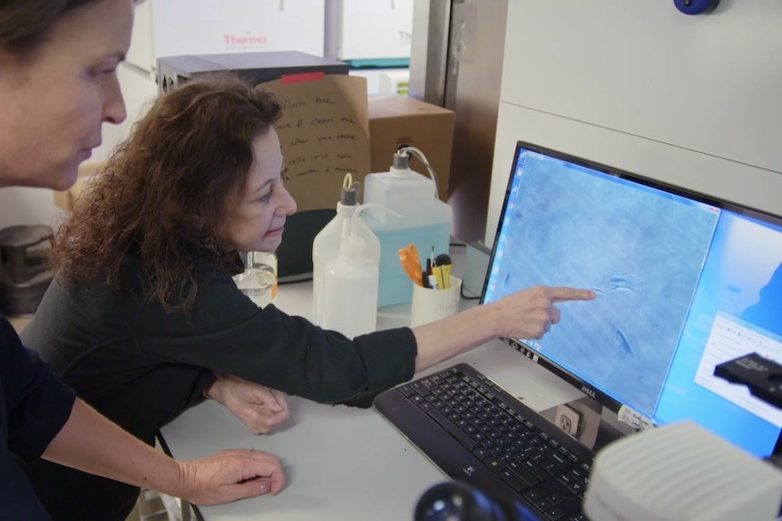 Professor Campisi points at an image of senescent cells on a computer monitor.