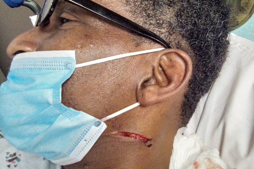 Kenneth's stab wound (1)