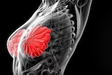 A black, red and grey graphic image of a woman's breast and torso showing tissue, muscles and skeleton.
