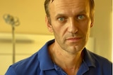 A man in a blue polo shirt with scars on his neck from being intubated.