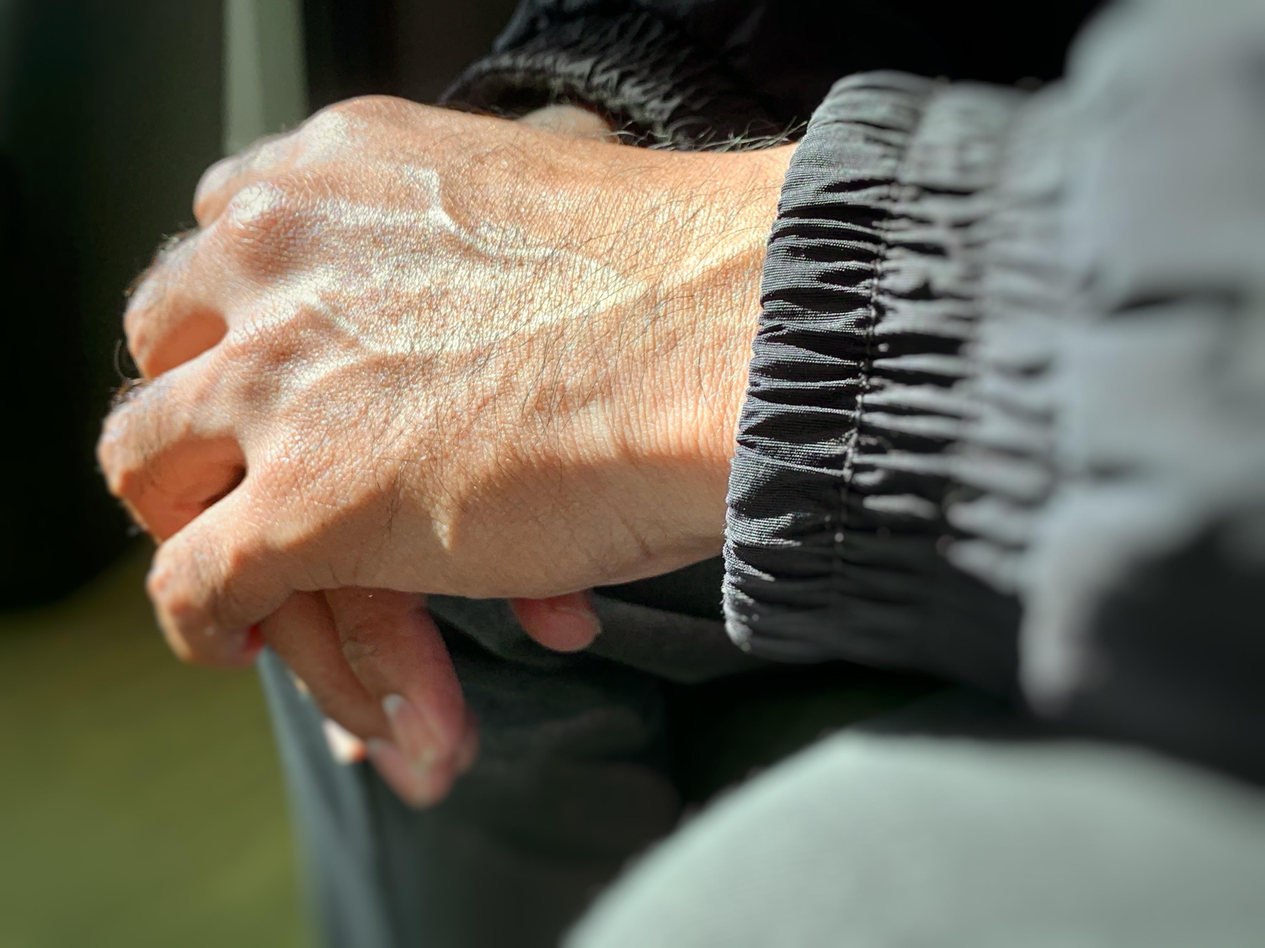 Asylum seeker's hands