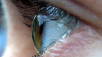 Close up of an eye from the side