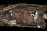 X-ray of a mummy showing the jewellery on the body