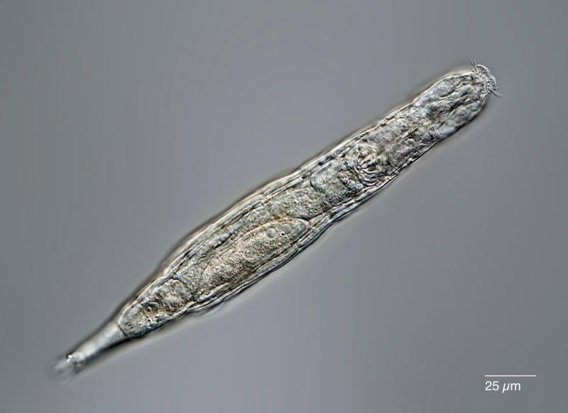 A microscope image of a rotifer