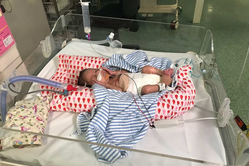 A baby in a cot in a hospital cot.