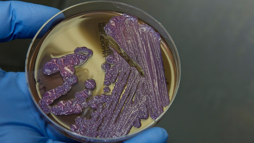 A slide of melioidosis bacteria being tested by a researcher