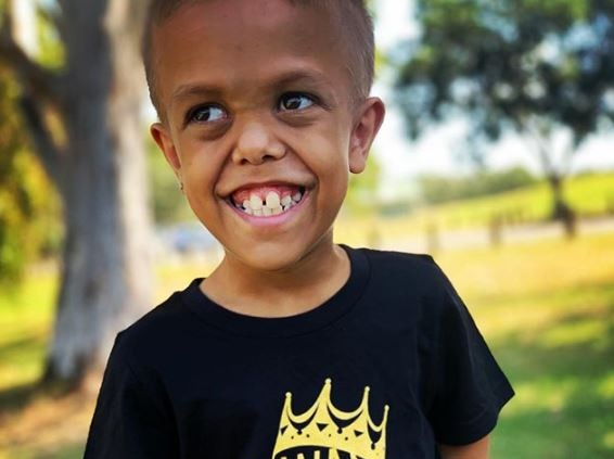 A young boy with dwarfism crosses his arms and stares into the camera with a tough expression on his face
