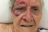 An elderly lady with bruises on her face.