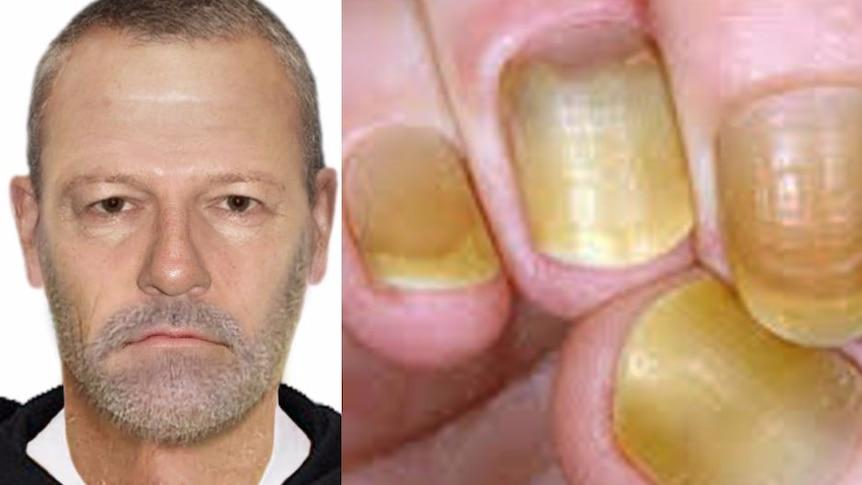 Police photo of yellow fingernails after sex assault