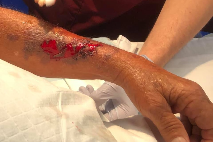 Arm wounds on an old man after a dog attack