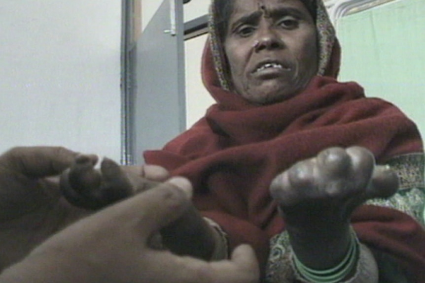 A lady holds up her hands, revealing stubs where fingers should be.