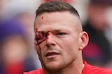 Steven May leaves with the field with a facial injury
