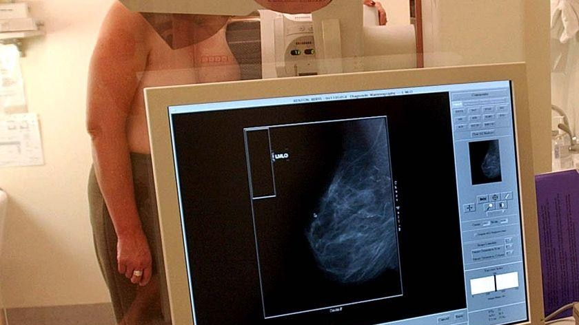 A woman undergoes a mammogram