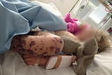 A young girl with her face pixellated lies on a hospital bed with a deep red meningococcal rash on her leg.