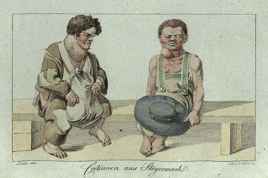 """Leopold Müller's copper engraving depiction of """"goitre and cretinism"""", 1815."""