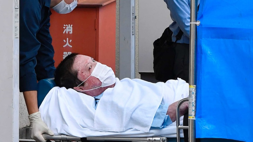 A man with scarring on his face wearing a surgical mask is carried on a stretcher.