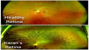 Retina photos
