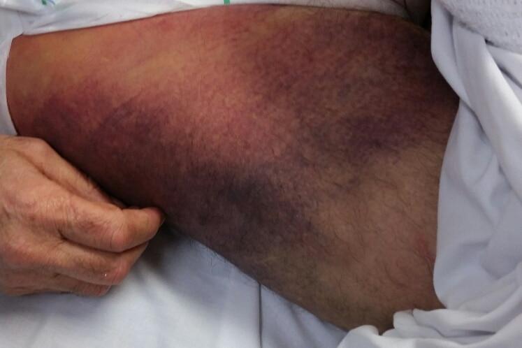 Bruises on Bob Spriggs' legs