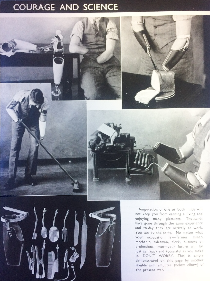 1945 amputees manual demonstrates prosthetic technology available to World War II veterans