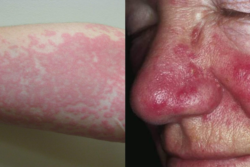 A composite image of two skin conditions, urticaria and rosacea.