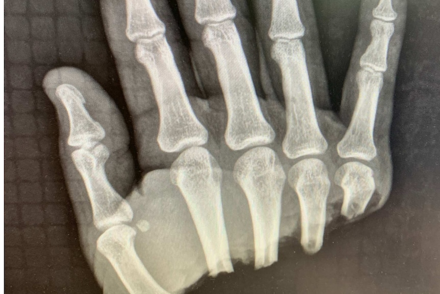 An x-ray showing a hand severed above the wrist but below the fingers.