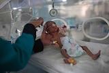 A medic checks a malnourished newborn baby inside an incubator