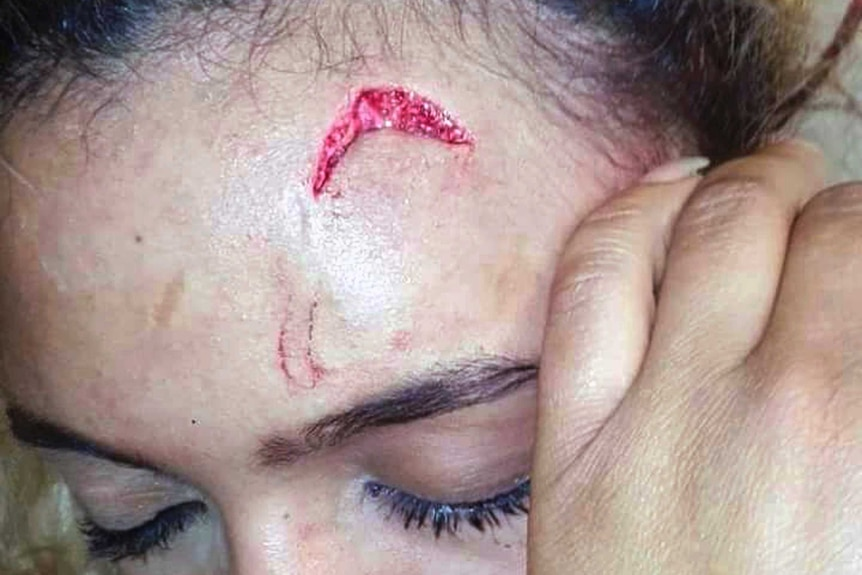 A closeup photo shows a gash on the forehead of Debbie Engels.