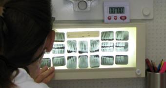 Health professional studying dental xrays