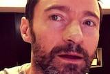 Hugh Jackman posts on Instagram after having a skin cancer removed.