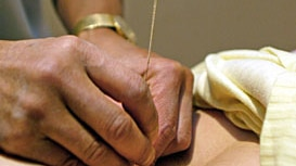 The team says it does not know why acupuncture increases the pregnancy success rate.