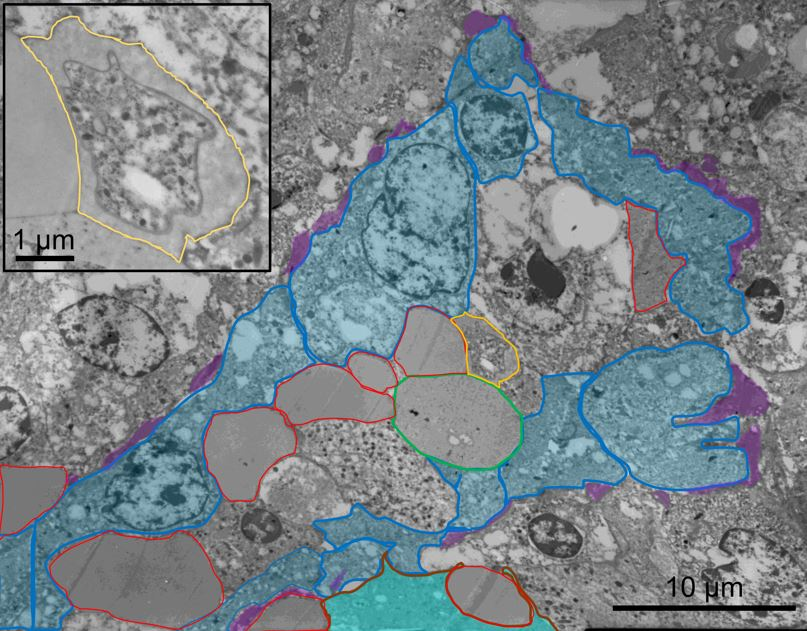 Electron microscope image of malaria parasite in spleen tissue