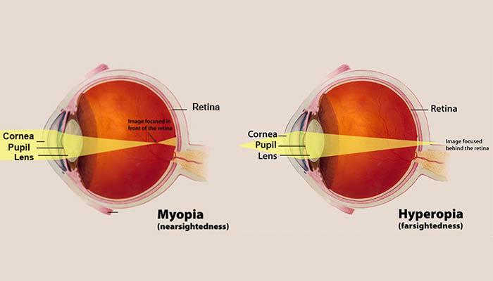 Illustration of myopia and hyperopia