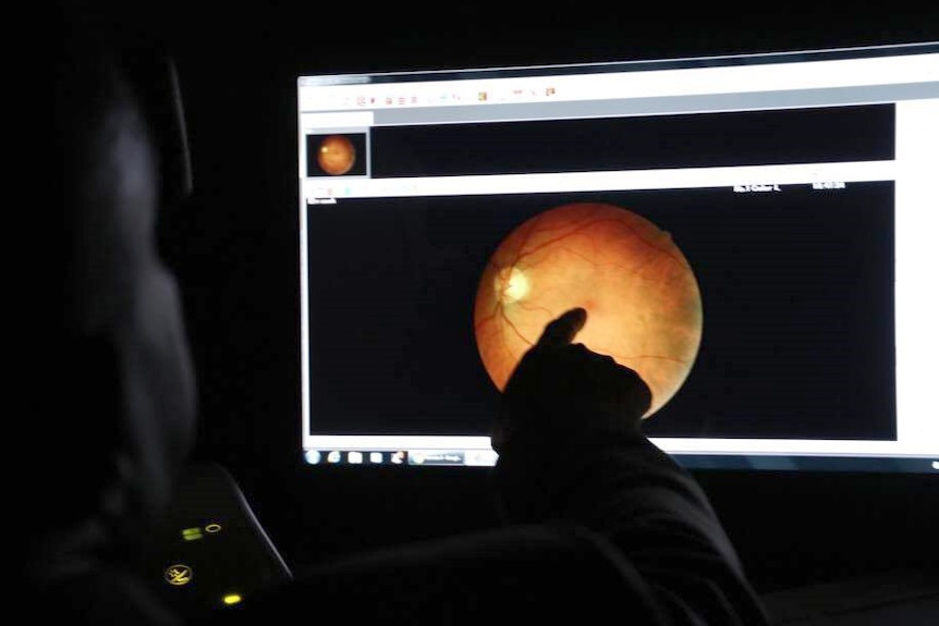 A doctor looks at a scan of an eye of a computer to try and detect disease.