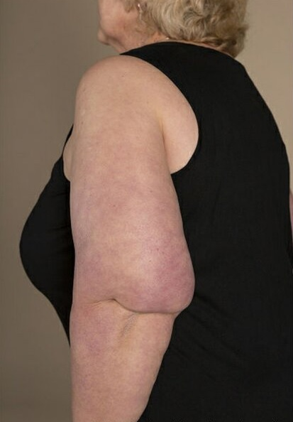 Photo of a woman facing side-on, wearing a black sleeveless shirt with abnormal fat deposit at back of her elbow