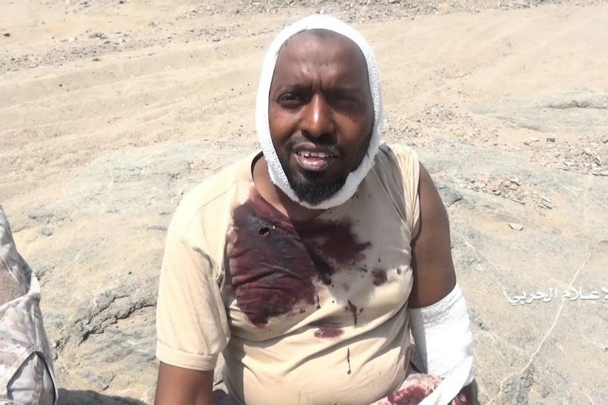 A man wearing a blood-stained shirt and a bandage on his head sits on a rock.