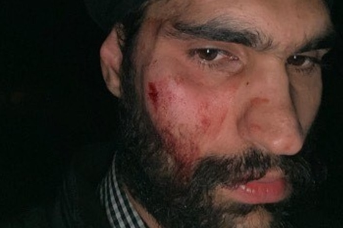 A man with a bruised and cut right cheek
