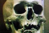A skull that could belong to notorious Australian bushranger Ned Kelly