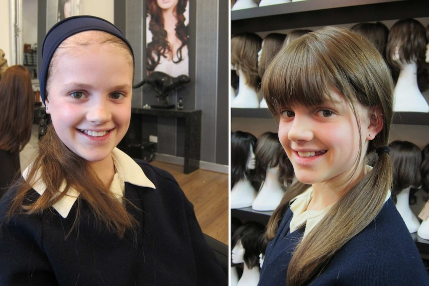 Composite image showing smiling young girl with thinning hair on the left and then wearing a wig on the right.