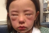Amelie King suffers an allergic reaction