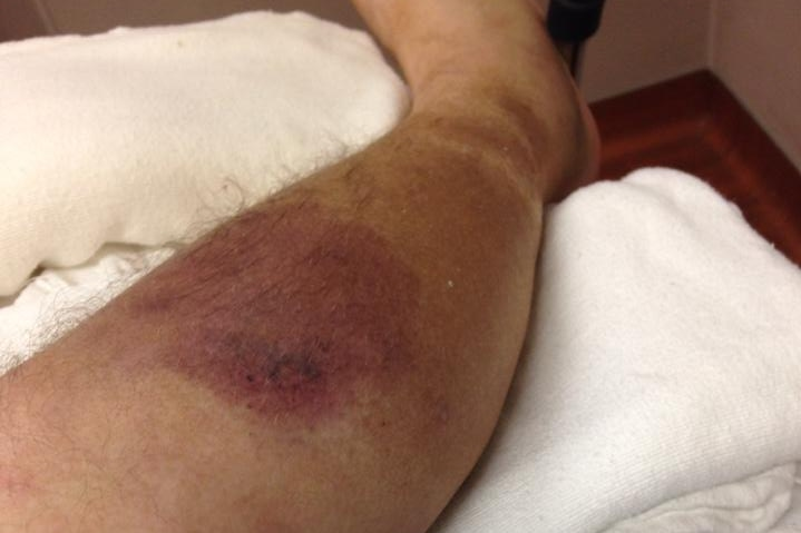 An early-stage necrotising fasciitis infection on a man's leg.