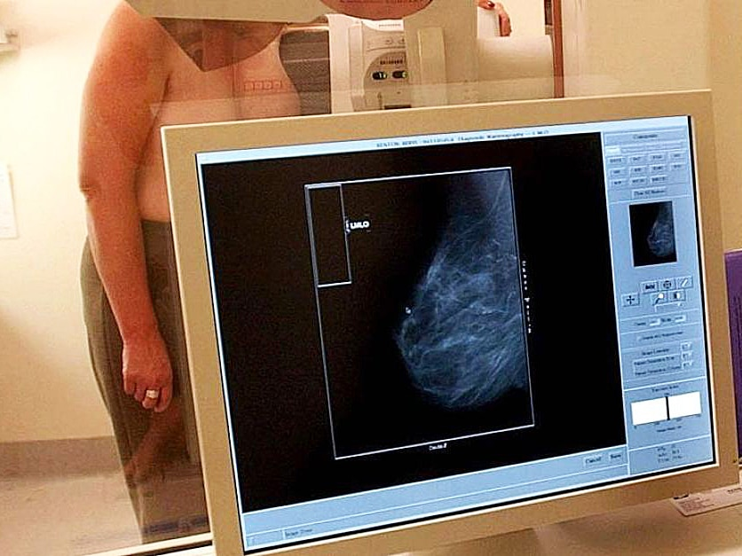 A woman gets her breasts scanned.