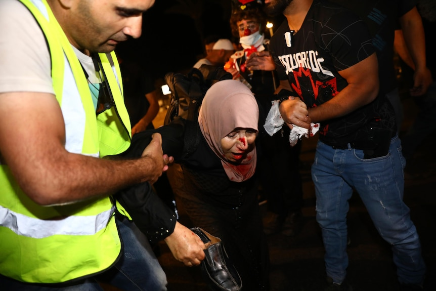 Men carry a woman in a hijab bleeding from her face