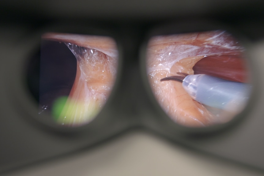 view of operation through goggles