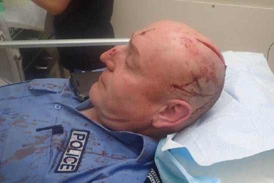 A police officer with an open wound on his head sits on a hospital bed.