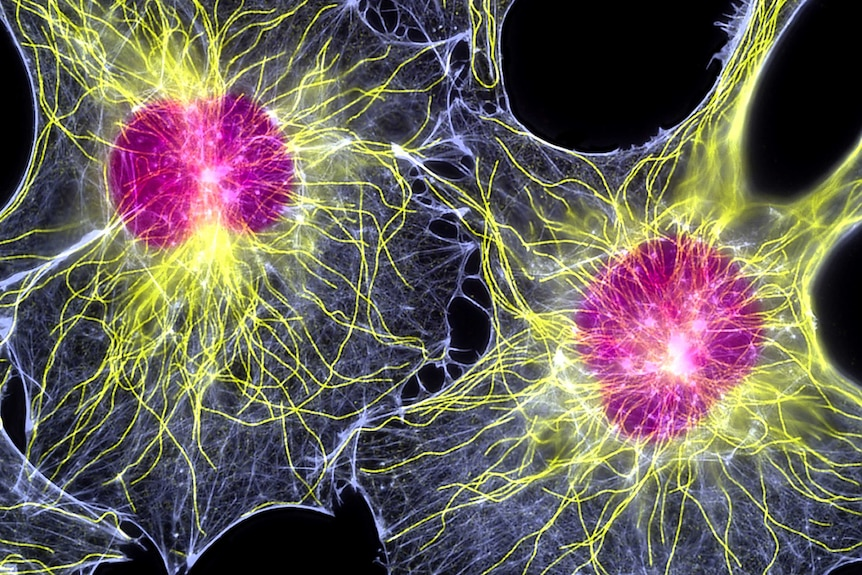 Electron microscope image of two fibroblasts (skin cells).