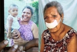 A composite image of Marggeret Honorobo before and after a fatal tumour grew on her face.