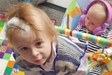 A toddler sits on a baby swing in front of an infant. The toddler has a surgical  dressing on her head.