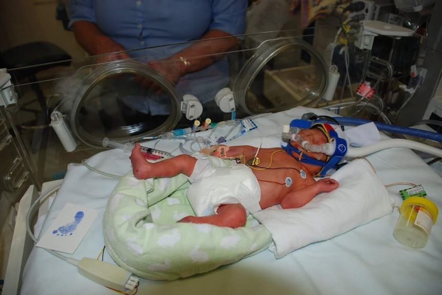 Premature baby hooked up to a CPAP machine in a humidicrib.