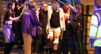 An injured man is escorted away from the scene.