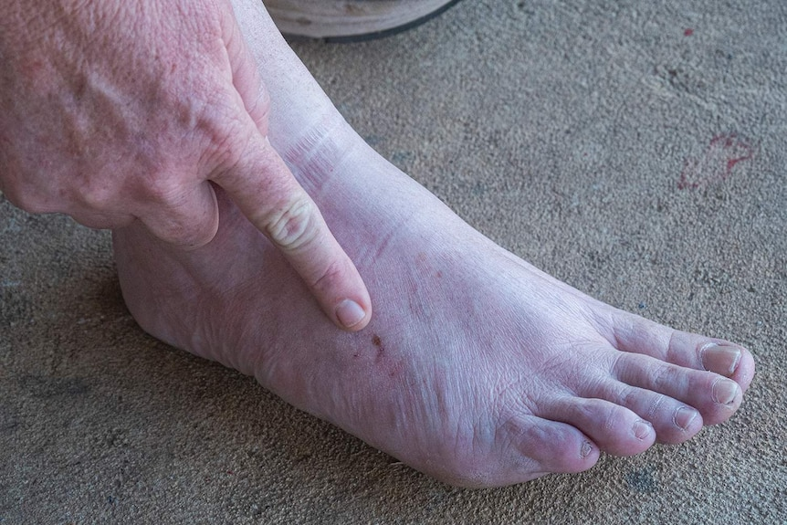 A lady point to a bite mark on her foot